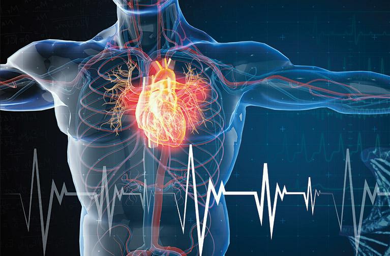 Cardiac Problems Post COVID